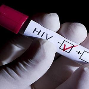 prueba VIH